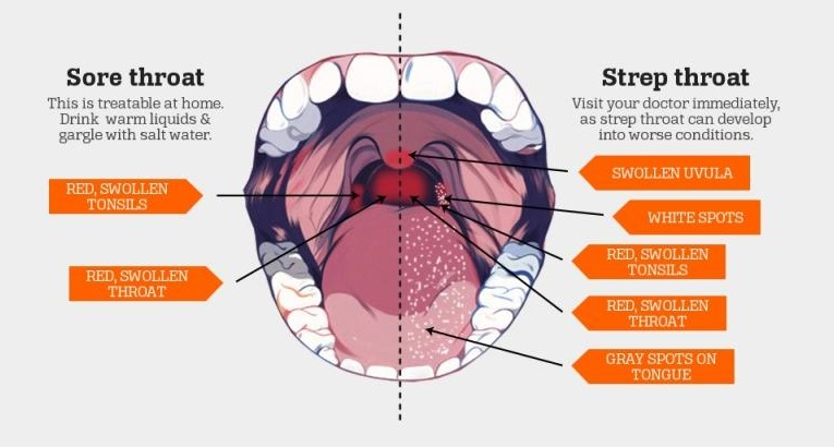 Treatment & Prevention of Strep Throat | Express Medical